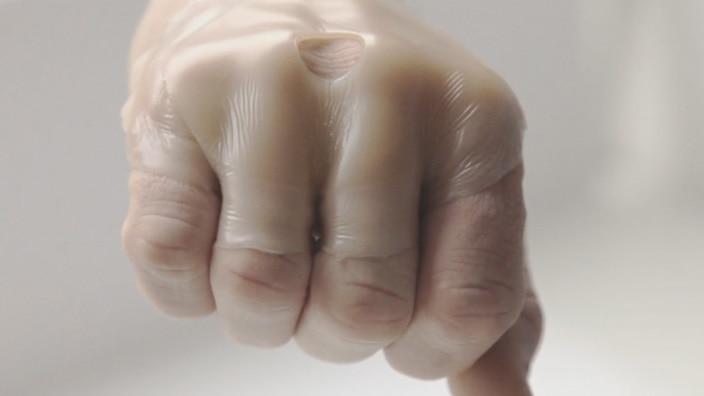 ストーマ・人工肛門 センシュラ ミオ 皮膚保護剤