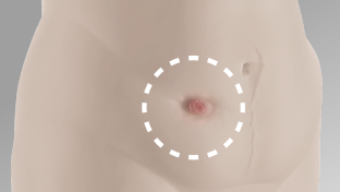 Inward area of stoma on abdomen